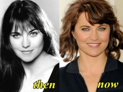Lucy Lawless Plastic Surgery