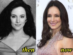 Madeleine Stowe Plastic Surgery Before and After