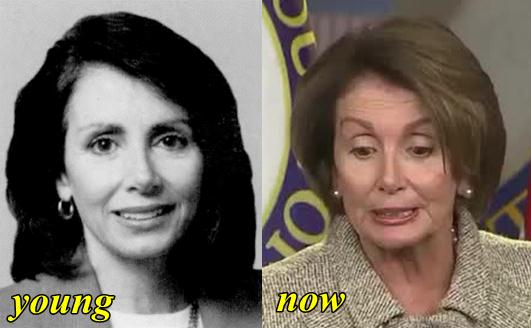 Nancy Polesi Plastic Surgery Before and After