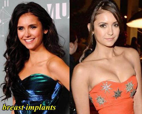 Nina Dobrev Plastic Surgery Breast implants
