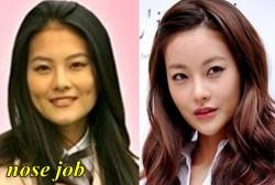 Oh Yeon Seo Plastic Surgery