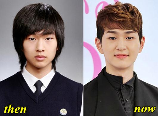 Onew Shinee Plastic Surgery Rumor