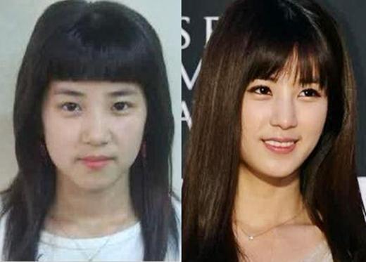 Park Chorong Plastic Surgery