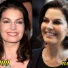 and fillers injection jamie colby plastic surgery before and after