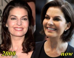 Sela Ward Plastic Surgery Before and After