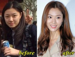 Seo Ji Hye Plastic Surgery