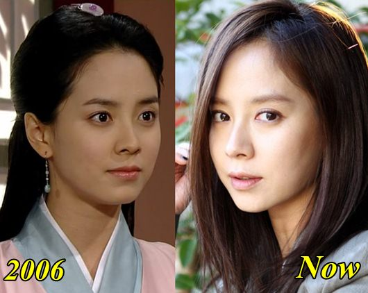 Song Ji Hyo Plastic Surgery