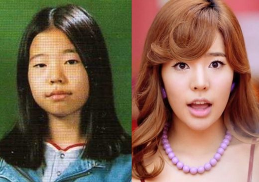 Sunny SNSD Plastic Surgery Before and After