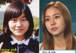 Uee Plastic Surgery Nose Job