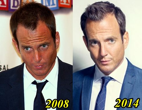 Will Arnett Plastic Surgery