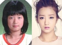 Yoon Bomi Plastic Surgery