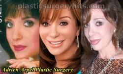 Adrien Arpel Plastic Surgery