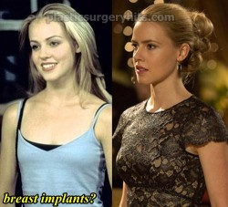 Amanda Schull Plastic Surgery Breast Implants