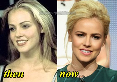 Amanda Schull Plastic Surgery