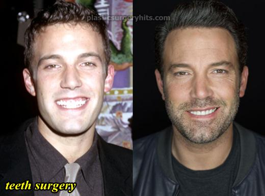 Ben Affleck Plastic Surgery Before After