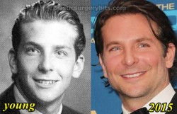 Bradley Cooper Plastic Surgery