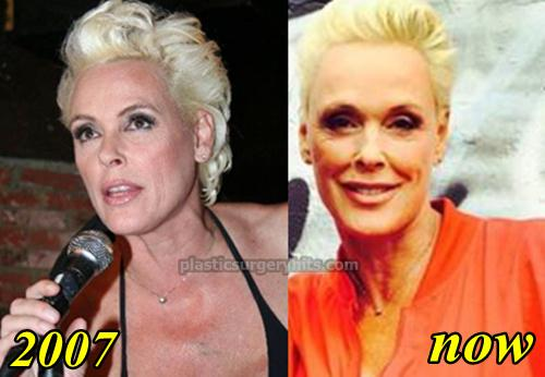 Brigitte Nielsen Plastic Surgery