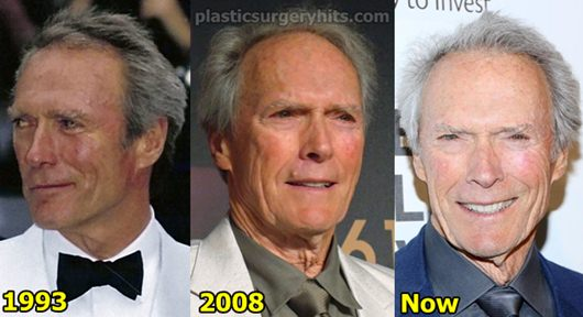 Clint Eastwood Plastic Surgery Before and After