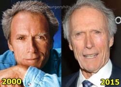 Clint Eastwood Plastic Surgery