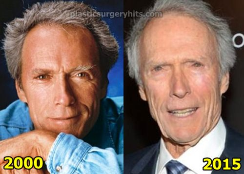 Clint Eastwood Plastic Surgery
