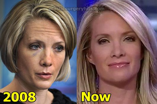 Dana Perino Plastic Surgery Before and After