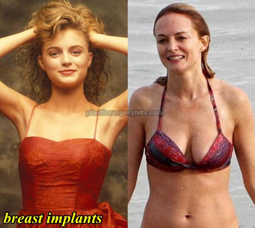 Heather Graham Breast Implants