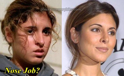 Jamie Lynn Sigler Nose Job