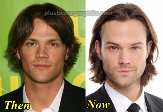 Jared Padalecki Nose Job Plastic Surgery