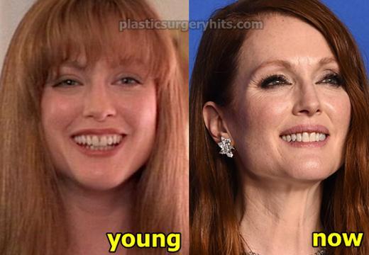 Julianne Moore Plastic Surgery Rumor