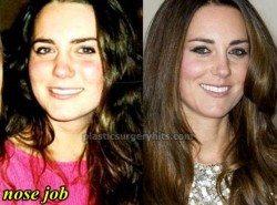 Kate Middleton Nose Job