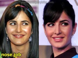 Katrina Kaif Nose Job