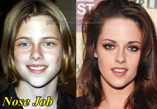 Kristen Stewart Plastic Surgery Nose Job
