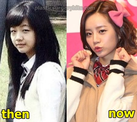 Lee Hyeri Plastic Surgery Before and After