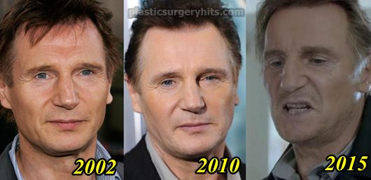 Liam Neeson Plastic Surgery Before and After