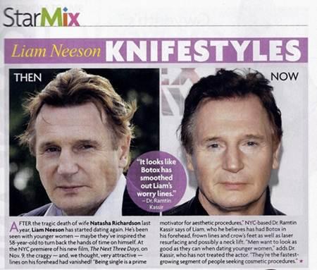 Liam Neeson Plastic Surgery