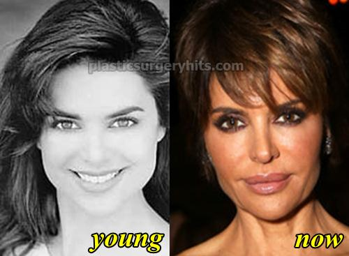 Image result for lisa rinna young,lip