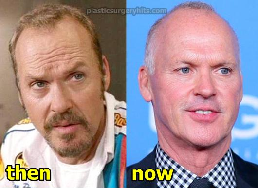Michael Keaton Plastic Surgery Before and After