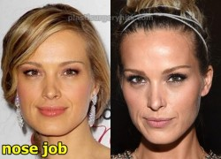 Petra Nemcova Plastic Surgery Nose Job