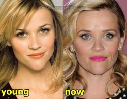 Reese Witherspoon Plastic Surgery Fact or Rumor