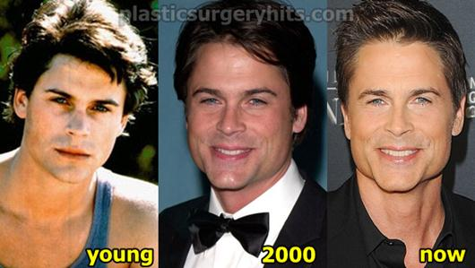 Rob Lowe Plastic Surgery Before and After