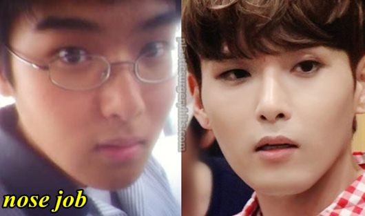 Ryeowook Plastic Surgery nose Job