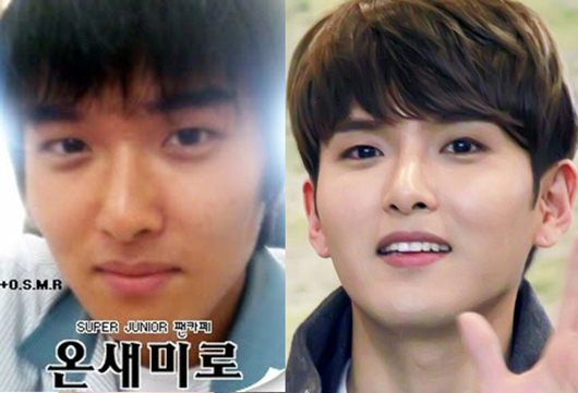 Ryeowook Plastic Surgery