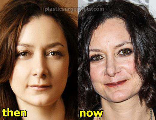 Sara Gilbert Plastic Surgery Before and After