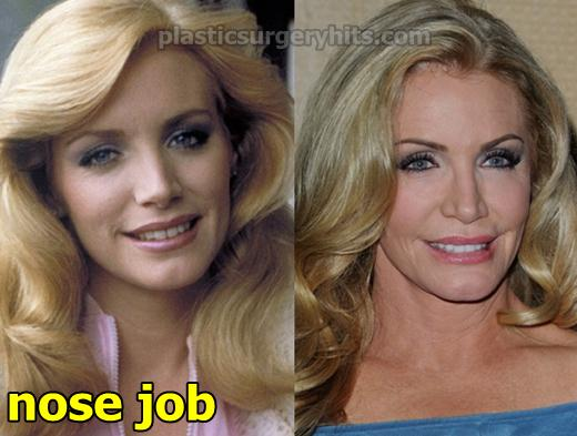 Shannon Tweed Nose Job