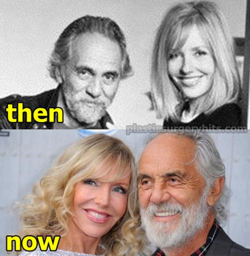 Shelby Chong Plastic Surgery before and After