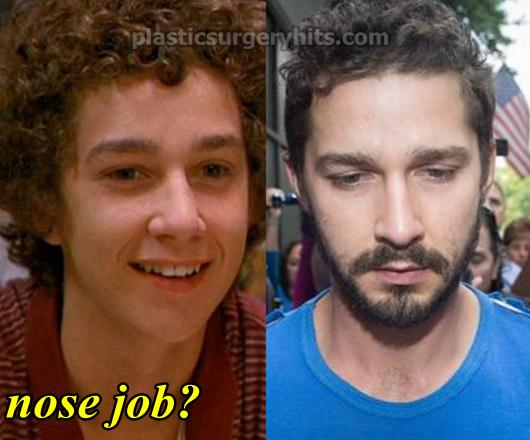 Shia LaBeouf Plastic Surgery Nose Job