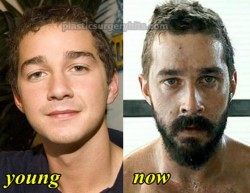 Shia LaBeouf Plastic Surgery