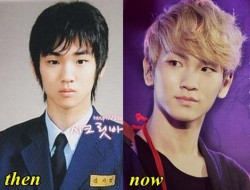 Shinee Key Plastic Surgery Fact or Rumor