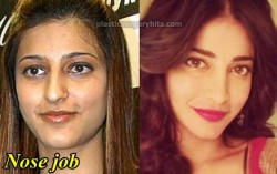 Shruti Hassan Nose Job Before and After