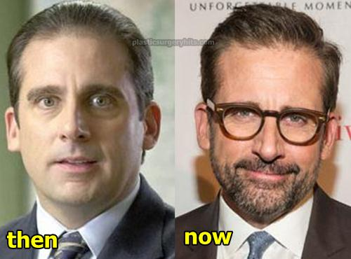 Steve Carell Hair Implant